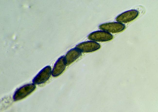The eight spores within the ascus within the perithecia within the stromata of Beech Woodwart (Hypoxylon fragiforme)