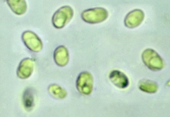 The spores of Schizopora paradoxa, with visible oil drops inside them
