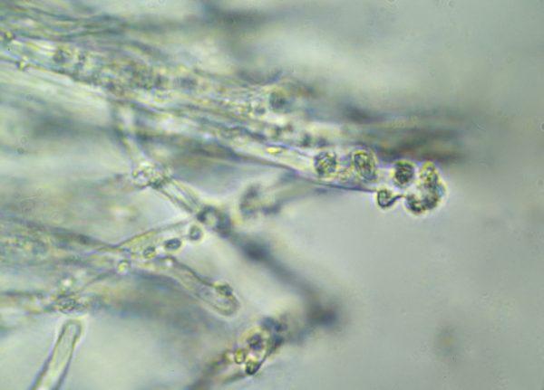 cystidia