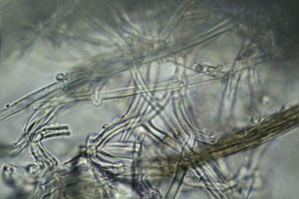 The mycelium of the Elder Whitewash under the microscope, x1000 magnification.